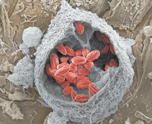 Vacúolos parasitóforos desenvolvidos pelo protozoário Leishmania amazonensis (em vermelho)em macrófago de camundongo (cinza). Imagem obtida em microscópio eletrônico de varredura por emissão de campo a partir de amostra fraturada por fita adesiva. Dezenas de parasitas estão alojados em espaçosos compartimentos intracelulares do macrófago hospedeiro. Nesses vacúolos espaçosos o parasita se refugia do sistema imune do hospedeiro. Produzida por Fernando Real, um dos autores da pesquisa, a imagem ficou em segundo lugar na categoria Dimensãomicro da edição 2012 do Prêmio Fotografia/CNPq