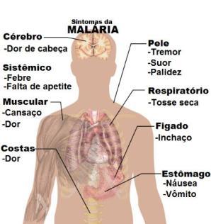 160420 - Sintomas de Malárias